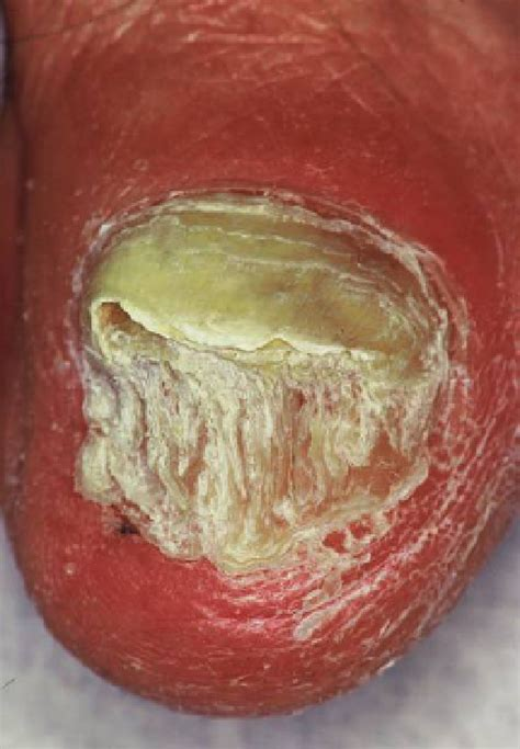 Subungual hyperkeratosis - The Nail in Differential