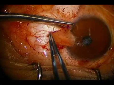 Pterygium Excision with Conjunctival Autograft - YouTube