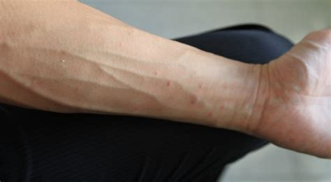 What is Scabies? Symptoms, Causes, Risk Factors and